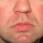Dermatologist | Juvederm | Botox | Del Mar | Solana Beach