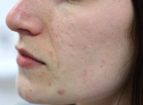 Acne Scarring   Dermatologist   Cysts   Del Mar   Solana Beach