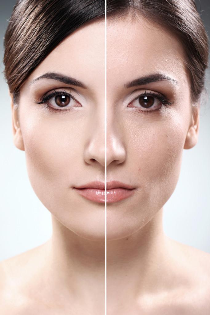 Gemini Laser Skin Rejuvenation
