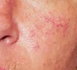 Dermatologist | Spider Veins | Sclerotherapy | Del Mar | Solana Beach