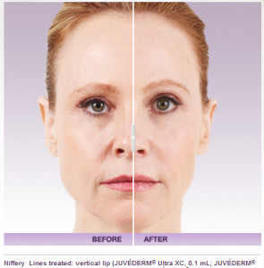 Juvederm and Juvederm Voluma