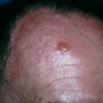 BCC – Basal Cell Carcinoma